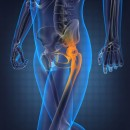 A Simple Overview of Hip Arthroscopy Surgery